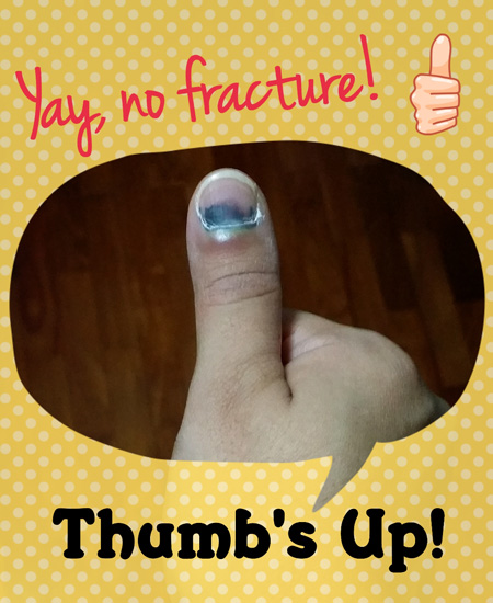 Fractured thumb
