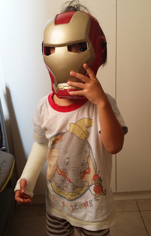 The cast is part of the Iron Man armour, and so it looks