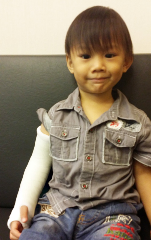 The orthopaedic specialist was impressed by how he endured what he thought would be great pain for a two-year-old. This boy is such a trooper. He didn't even wince and held his arm so still when it was being wrapped!