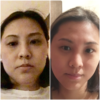 I caught a selfie of my very tired self on the left (in the dark, no less) just before the treatment and there - can you see the double chin? The one on the right is after one session of Endermolift and it's considerably more contoured